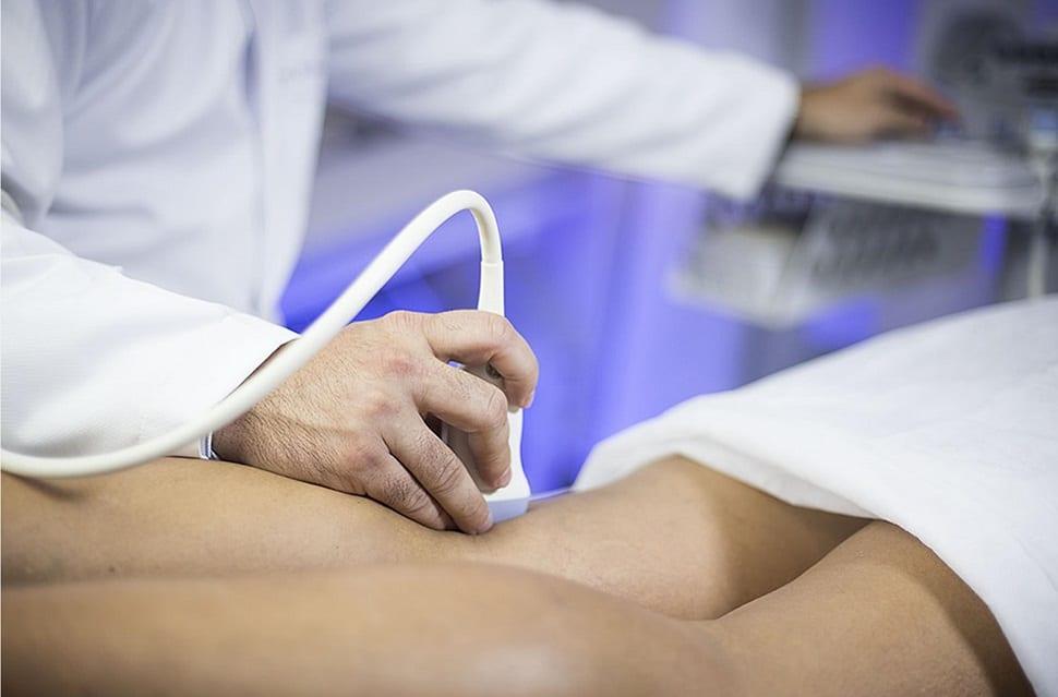 cirurgia varizes Brasília