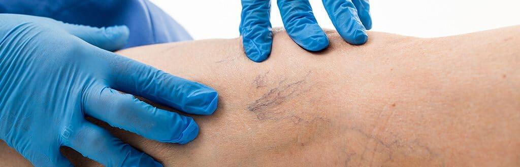 Escleroterapia-tratamento-de-varizes