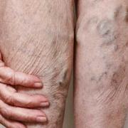 Quais Exercícios São Proibidos Para Quem Tem Varizes Nas Pernas